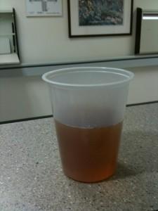URINE TEA