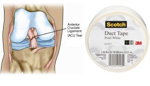 acl knee