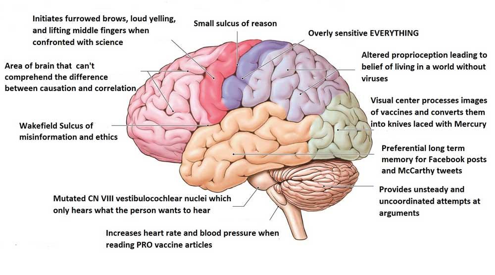anti vaccine brain