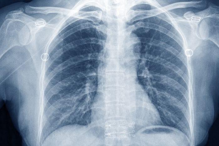 Damnyouautocorrect: Radiologist Diagnoses 'Cardi B Lines' on