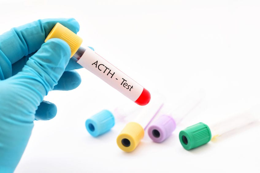New ACTH Stim Test Measures Serum Cortisol Every Minute